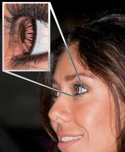 Multifokális kontaktlencse